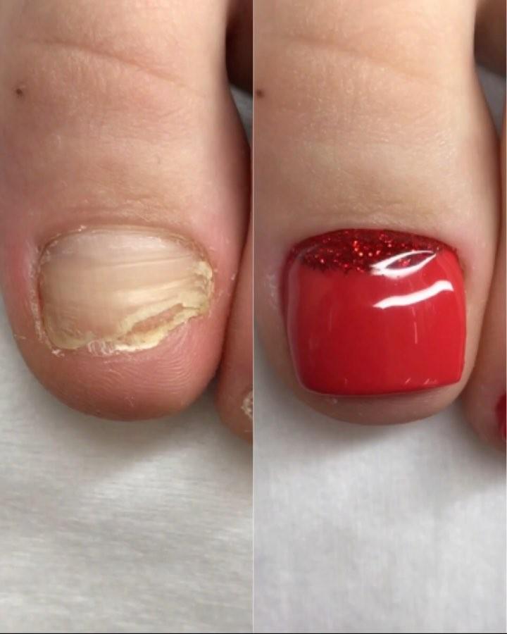 Toe nails transformation pedicure: Broken Nails Transformation Pedicure Tutorials
