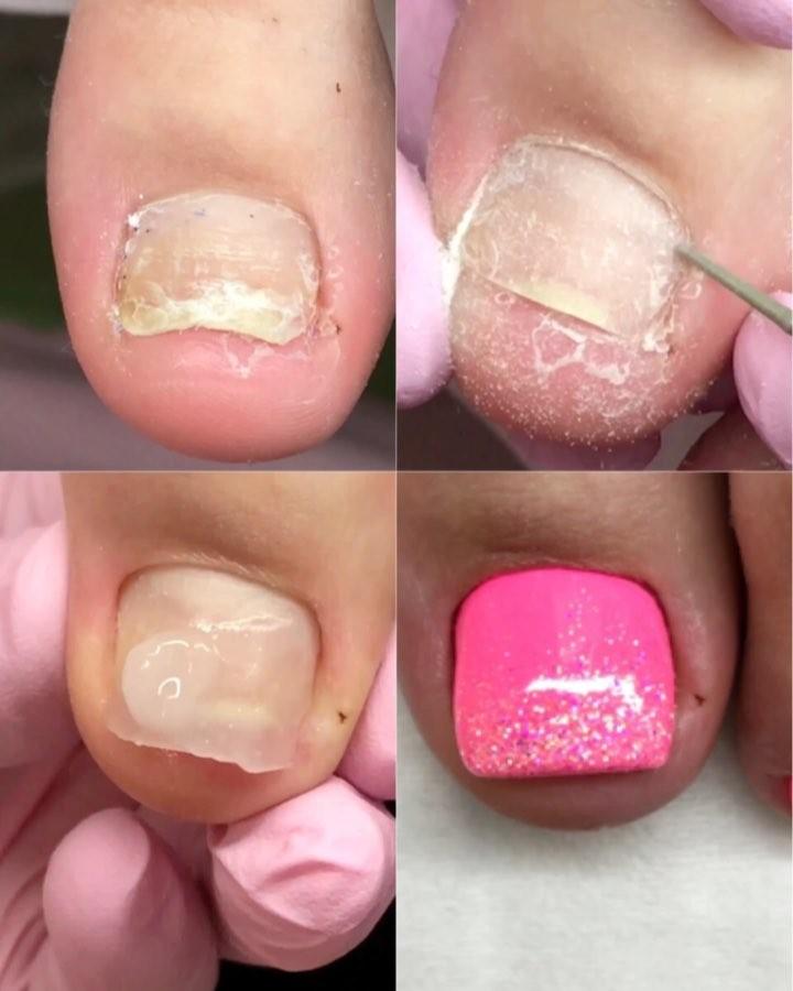 Injured Toe Nails Transformation: Broken Nails Transformation Pedicure Tutorials