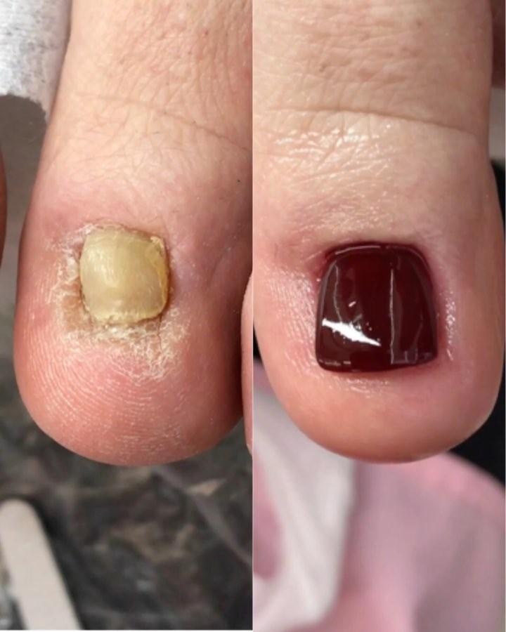 Injured Toe Nails Tutorial: