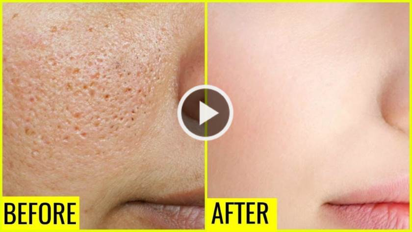 How to Get Rid of Large Pores Permanently